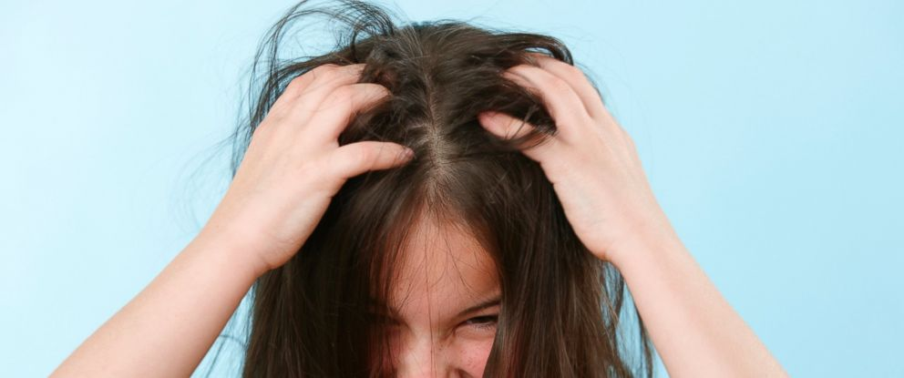 PHOTO: According to the CDC, there are 6 to 12 million head lice infestations a year among young children in the U.S. each year.