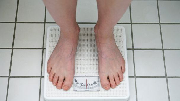 PHOTO: New scientific analysis says our misconceptions about obesity may keep us from losing weight