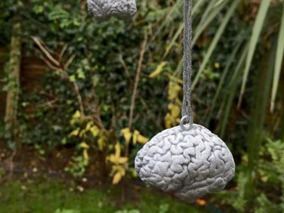 3d Printed Christmas Ornaments.Doctor 3d Prints Brain As Christmas Tree Ornament Abc News