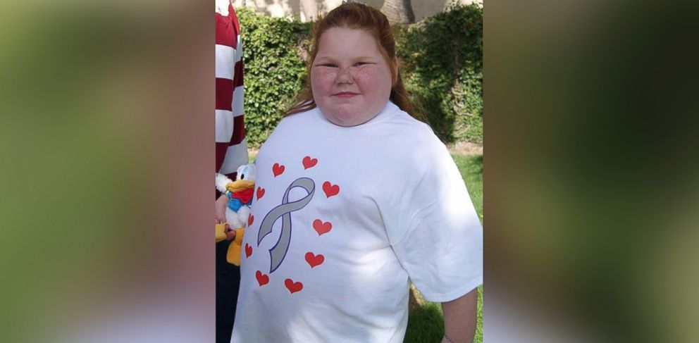PHOTO: Alexis Shapiro has gained over 100 pounds after having a benign brain tumor removed.