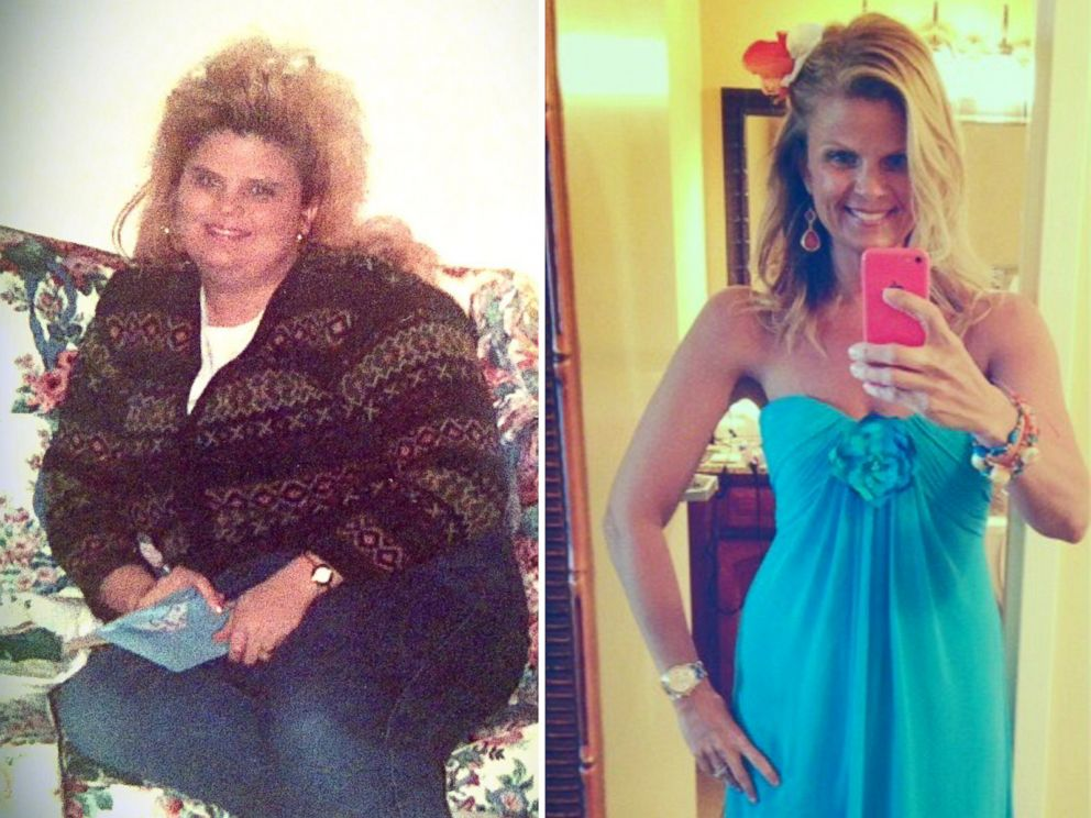 PHOTO: Lori Filipiak is shown before and after her dramatic weight loss.