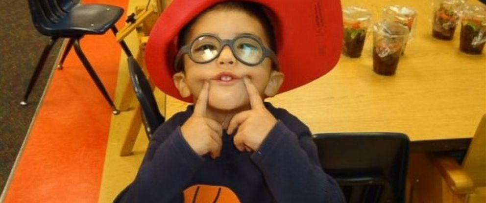 PHOTO:Maddox has Mobieus Syndrom that affects his cranial nerves and his ability to smile.