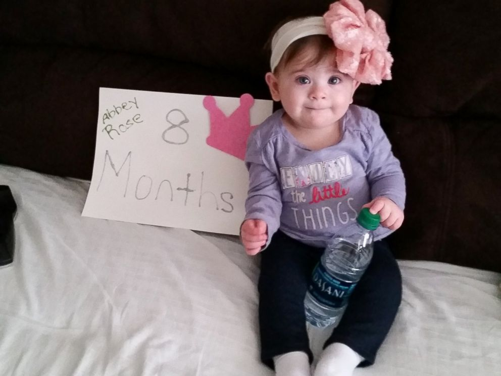 PHOTO: Abbey Monzietti is thriving months after having a large tumor removed shortly after birth.