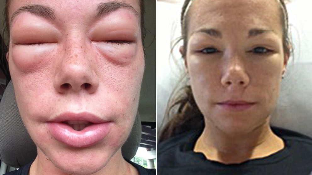 At left, Mary Johnson experiences severe swelling on the way to the emergency room, and at right, Johnson in the Intensive Care Unit several hours later.