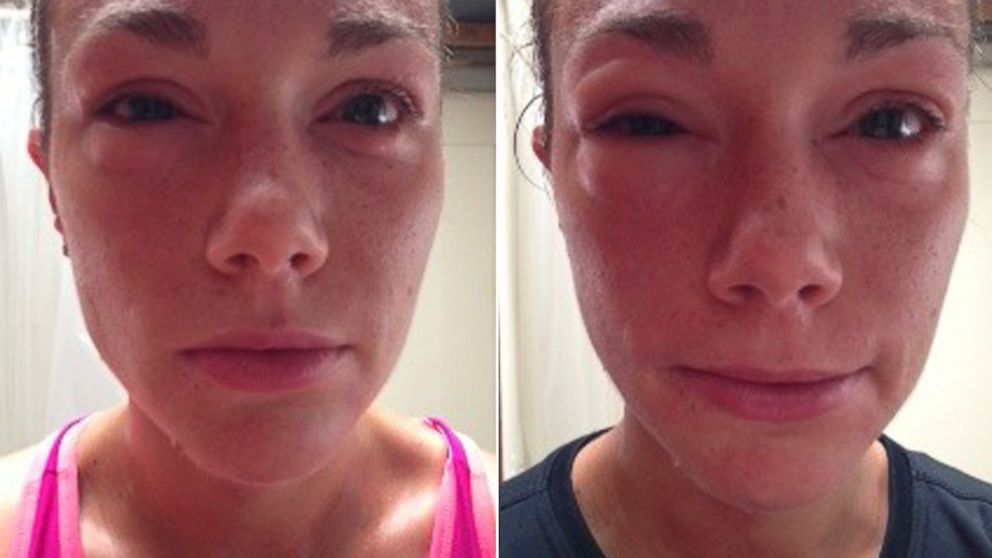 At left, Mary Johnson a few minutes after returning from a run, and at right, a photo of Johnson after the onset of exercise-induced anaphylaxis.
