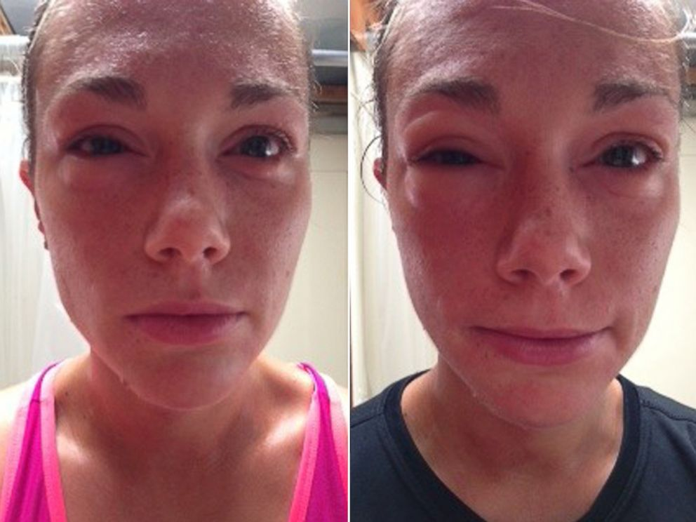 PHOTO: At left, Mary Johnson a few minutes after returning from a run, and at right, a photo of Johnson after the onset of exercise-induced anaphylaxis.