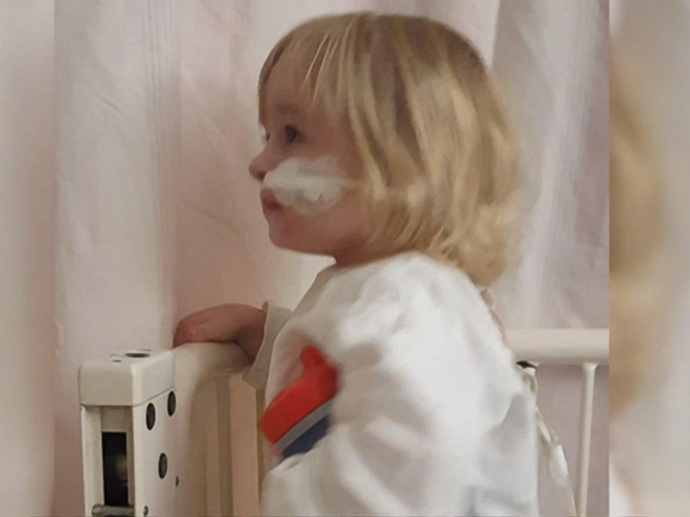 PHOTO:Katie Smith, 2, is recovering after x-rays showed she had a small battery lodged in her esophagus.