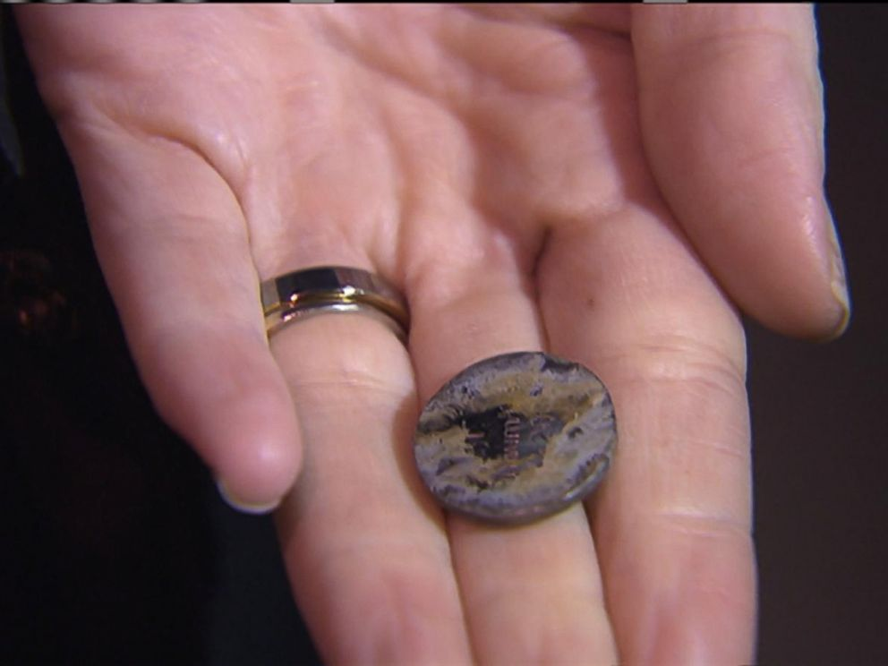 PHOTO:Katie Smith, 2, had this circular lithium battery lodged in her esophagus.