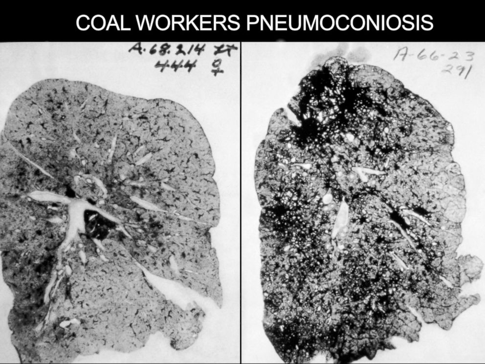 PHOTO: This occupational health image shows the lungs of a coal worker with Pneumoconiosis, or Black Lung Disease.
