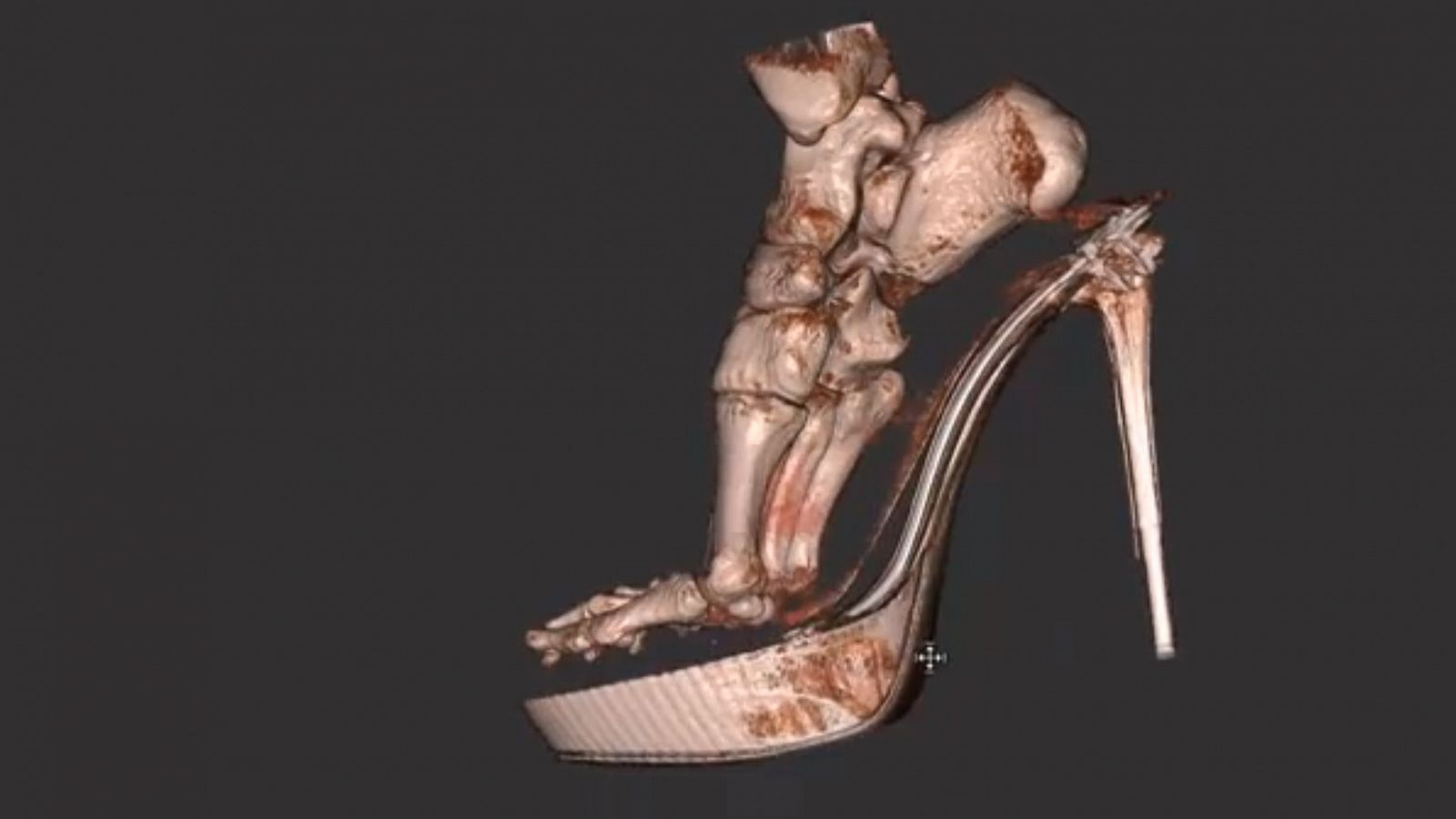 f7b41ab5a92 3-D Scan Reveals Foot Damage by High Heels - ABC News