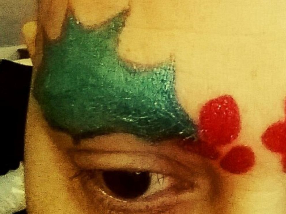 PHOTO: Breast cancer patients and their loved ones are getting into the holiday spirit with chemo brows.