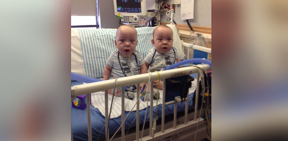 Conjoined Twins Leave Dallas Hospital Abc News