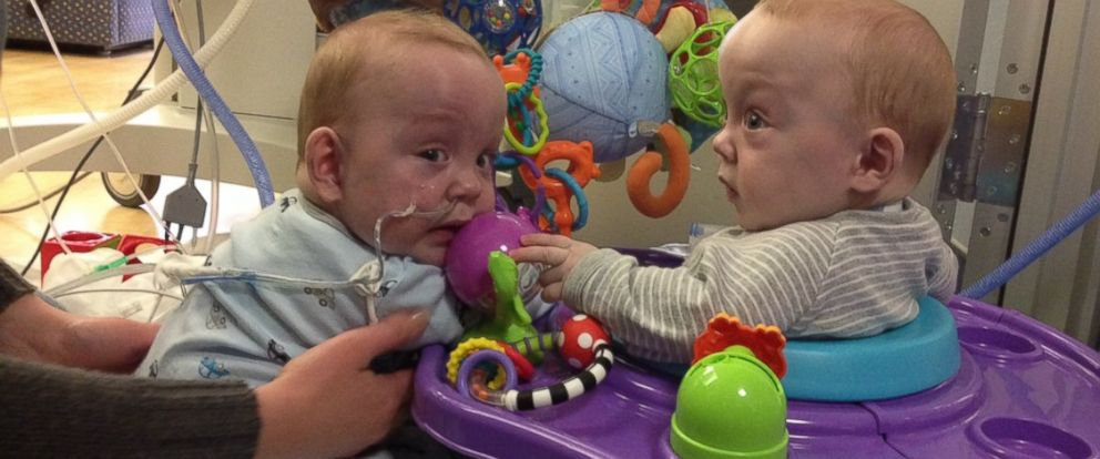 PHOTO: Owen and Emmitt Ezell formerly conjoined twins enjoy a play date.
