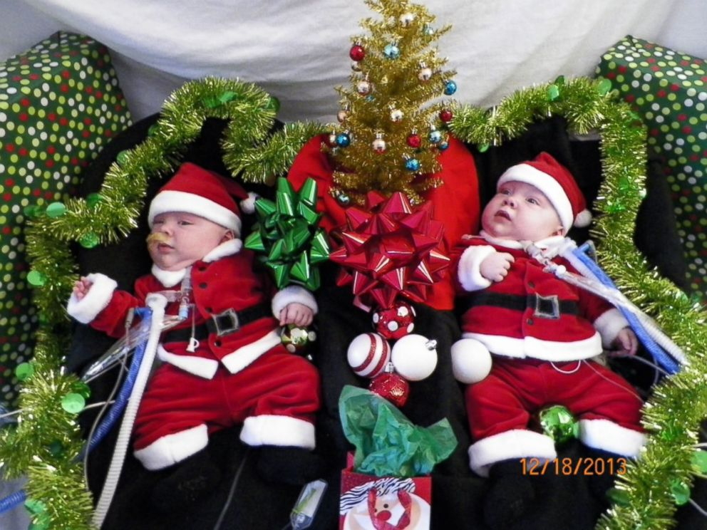 PHOTO: Formerly conjoined twins Owen and Emmitt Ezell get into the Christmas spirit.