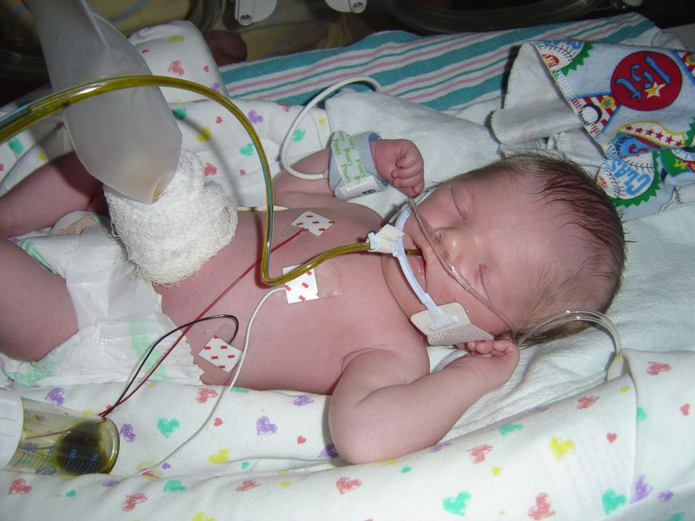 PHOTO: Dawson Barnett was born with Moebius syndrome, a disease that paralyzed his facial muscles.