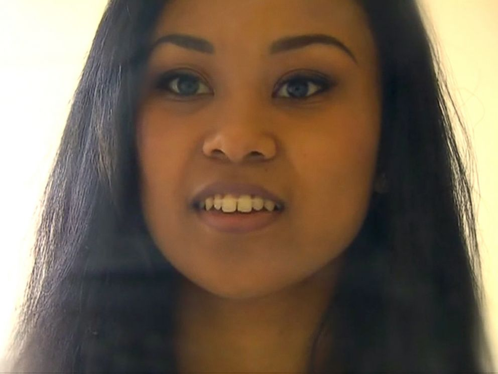 PHOTO: A Washington State woman claims she closed her tooth gap in 44 days using $5 worth of hair elastics.