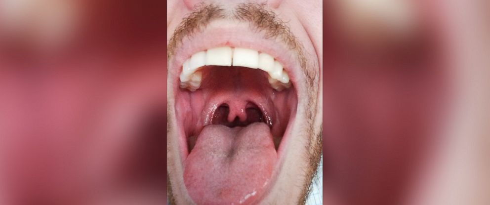"""PHOTO: Albert Torres was born with a """"bisected"""" uvula."""