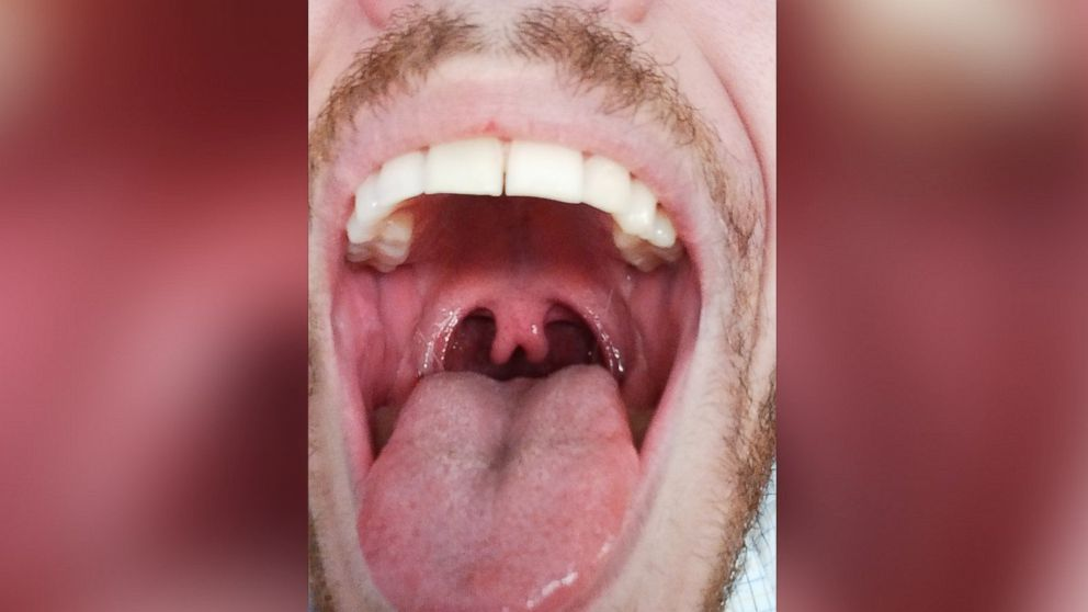Photo Of Mans Double Uvula Goes Viral Abc News
