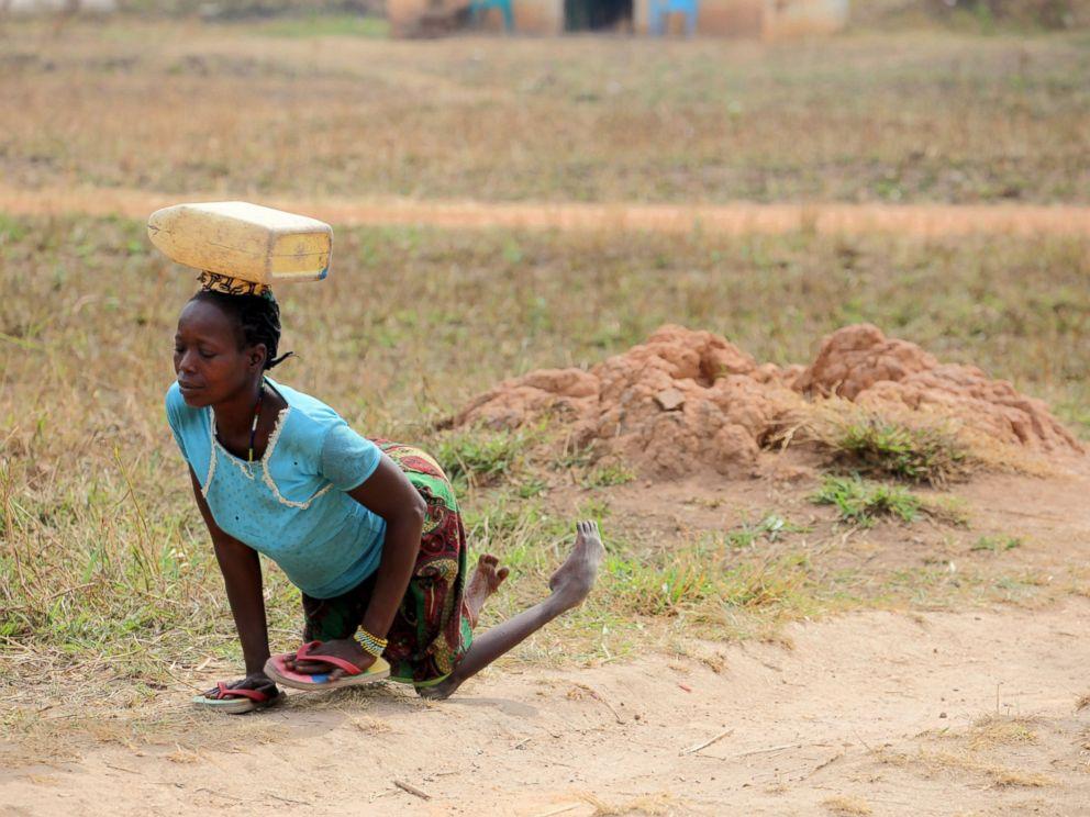 PHOTO: Mia Farrows photo of a woman in the Sudan with polio.