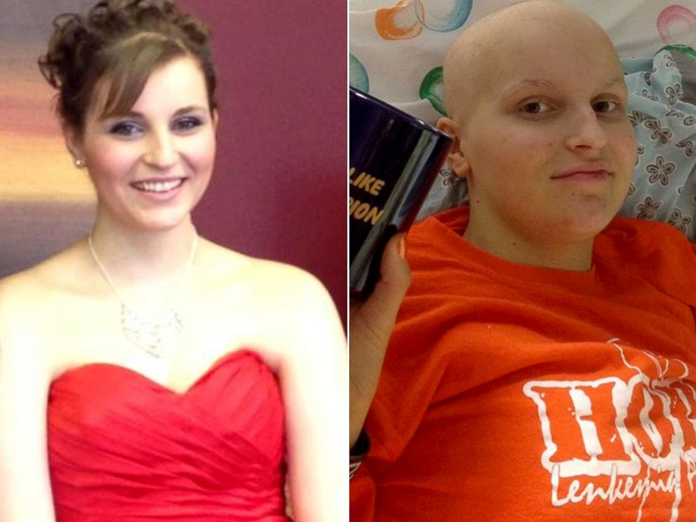 PHOTO: Hope Banghart was diagnosed with leukemia when she was 15. She has been cancer-free for nearly two years.