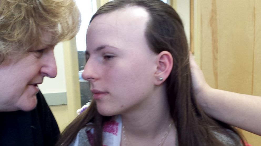 Justina Pelletier with her mother, Linda Pelletier, who said her daughter is losing hair because of lack of medical care.