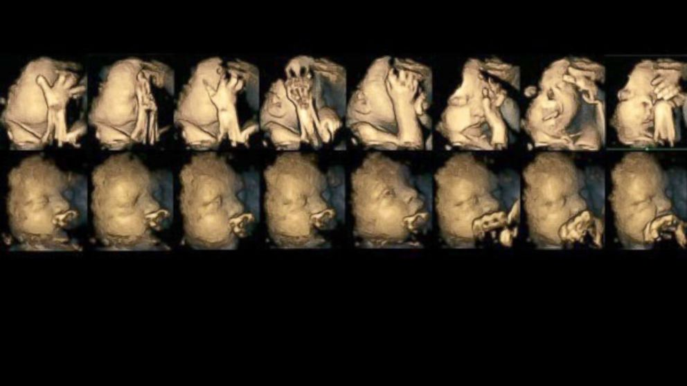 Ultrasound Study Reveals How Some Fetuses React To Smoking