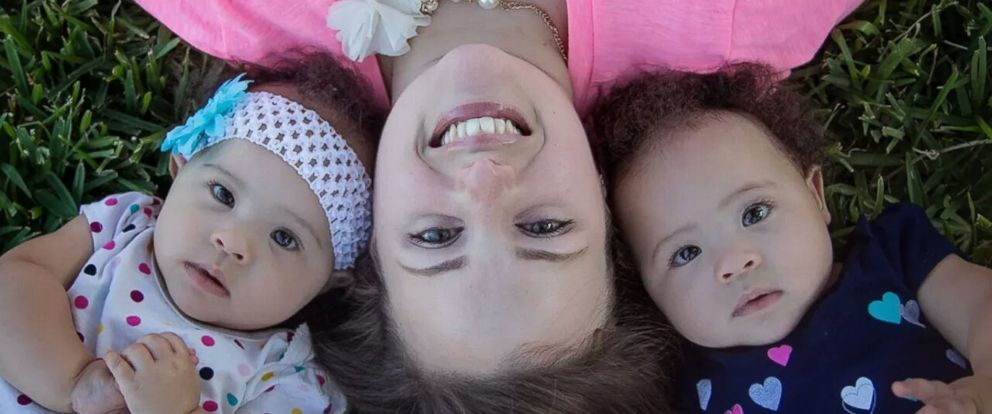 PHOTO: The girls are celebrating their first birthdays now, the mother told ABC News.