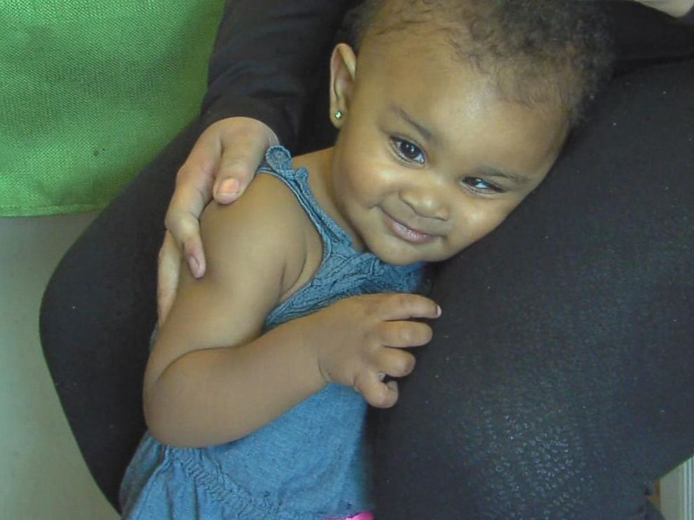 PHOTO: Little Brailynn Randolph goes to chemo every four weeks, as she battles retinoblastoma, a form of eye cancer.