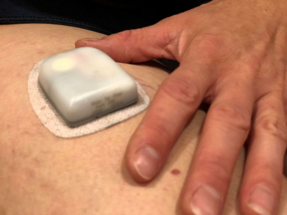 PHOTO: An insulin pump regulates a patients blood sugar levels.