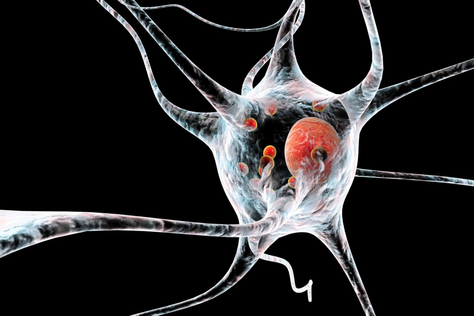 Long-term effects of ADHD? Study links disorder to Parkinson's, but