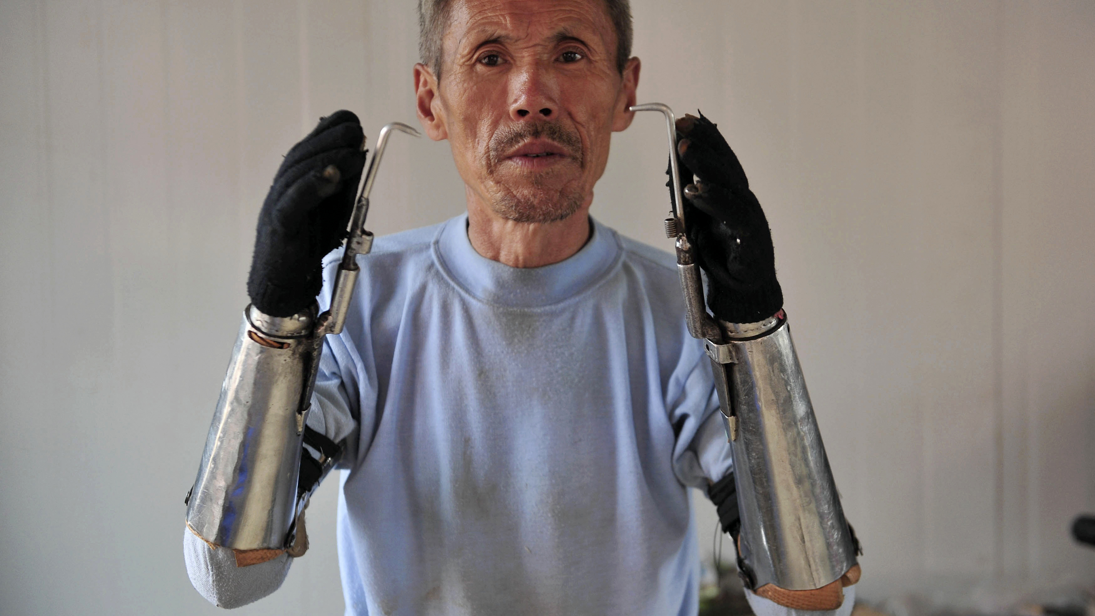 PHOTO: Sun Jifa raises up his prosthetic forearms as he poses for a picture in Yong Ji county, Jilin province, Sept. 25, 2012.