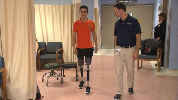 Boston Marathon bombing survivor helps teen get special prostheses to walk again after car accident