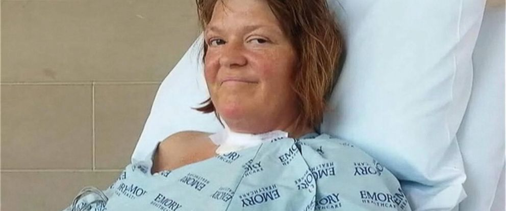 PHOTO: Kristie Vessell, 43, pictured here, contracted flesh-eating bacteria in her right leg, doctors say.
