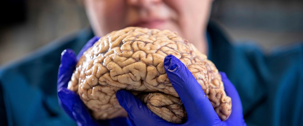 """In this Aug. 14, 2019 photo provided by the University of Kentucky, Donna Wilcock, of the Sanders-Brown Center on Aging, holds a brain in her lab in Lexington, Ky. She says that contrary to popular perception, """"there are a lot of changes that happen"""