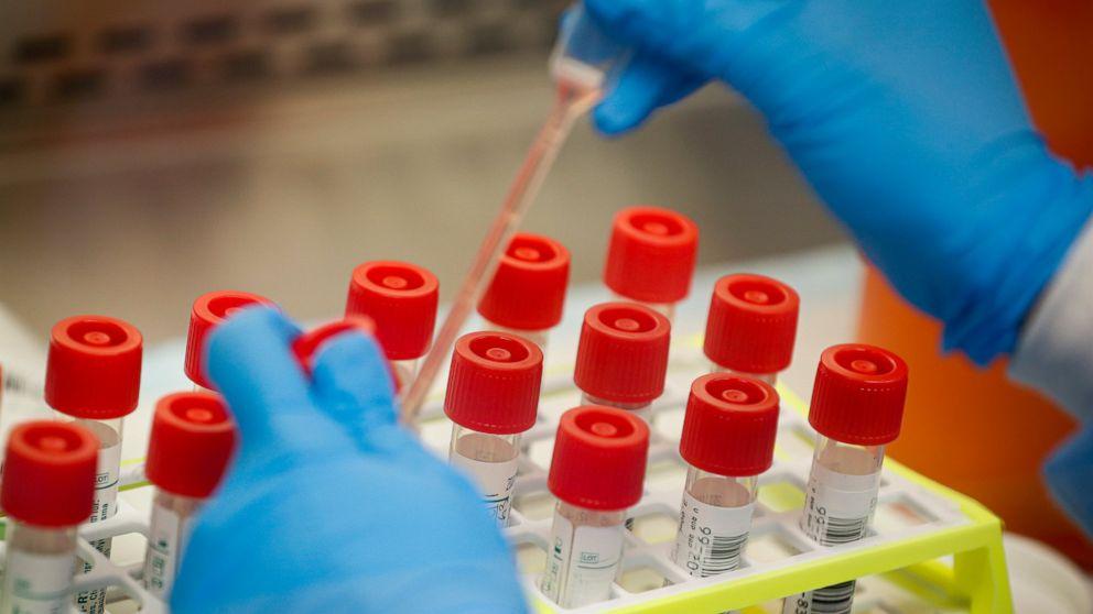 UNS die virus-Prüfung steht vor neuen Gegenwind: Lab Lieferengpässen
