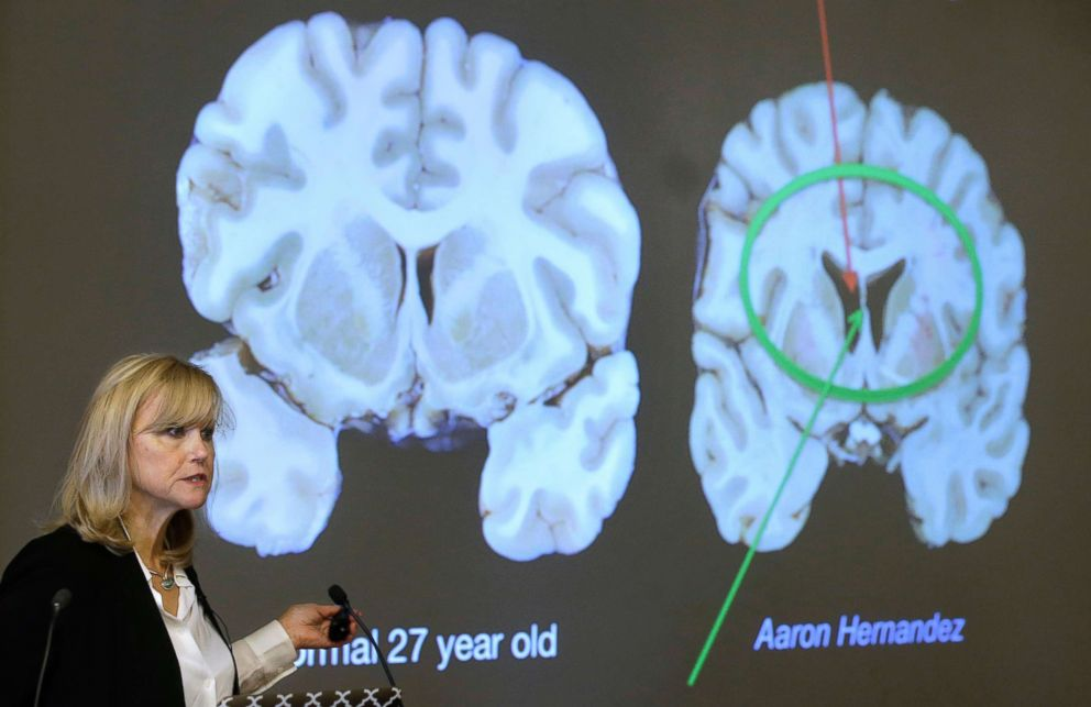 PHOTO: Ann McKee of Boston Universitys center for research into the degenerative brain disease chronic traumatic encephalopathy talks about damage to NFL football player Aaron Hernandezs brain, projected on a screen, in Boston, Nov. 9, 2017.