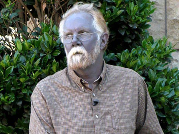 Internet Sensation 'Papa Smurf' Dies; Other Blue People Live On - ABC News