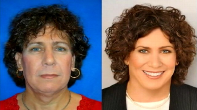Facial Feminization Surgery Gives New Life to Women Who Look Like