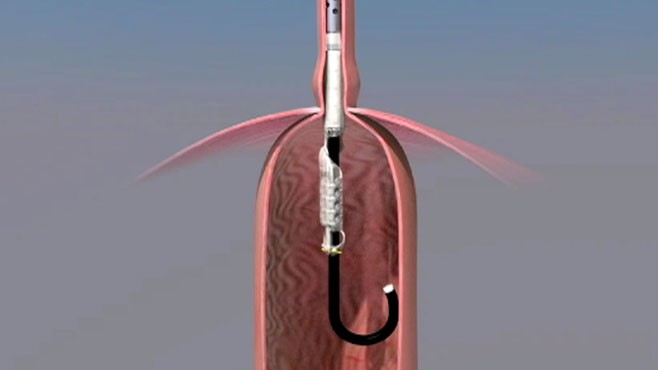 VIDEO: New non-invasive surgery to help heart burn.