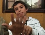 PHOTO: Lucas Gonzalez, seen here on Jan. 24, 2013, accidentally severed his finger when a heavy door slammed shut on his hand; the finger was reattached but his parents health insurance initially refused to pay.