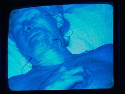 VIDEO: Chronic Sleep Loss Cannot Be Made Up Later