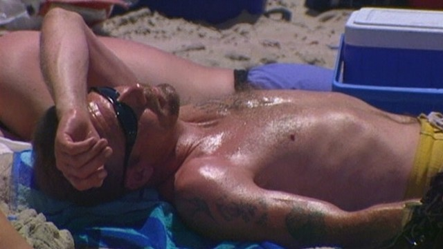 VIDEO: British researchers isolate molecule that triggers pain from sunburn.