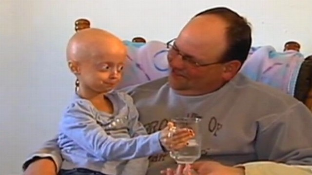 VIDEO: A cancer drug helped improve the symptoms of progeria, a rapid aging disease.