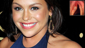 PHOTO Rachael Ray said she had surgery in July to remove a benign cyst on her vocal cords.