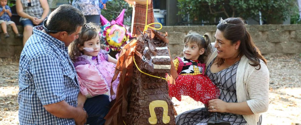 Formerly conjoined twins Eva and Erika Sandoval are seen here celebrating their third birthday.