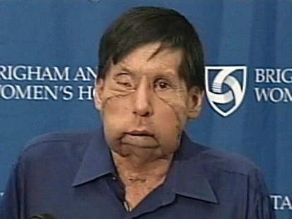 VIDEO: James maki receives a partial face transplant.