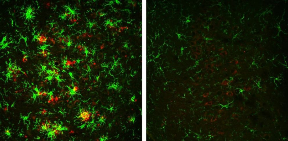 PHOTO: At left, the brain of a mouse with Alzheimers disease full of amyloid plaques shown in red, surrounded by activated microglial cells, in green. These indicators are reversed in animals that have gradually lost the BACE1 enzyme, shown at right.