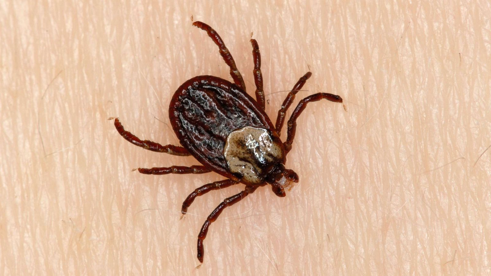can a tick really paralyze a person abc news