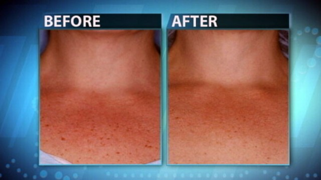 Skin Treatments for the Chest