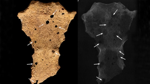 Oldest Evidence of Human Cancer Discovered in African Tomb